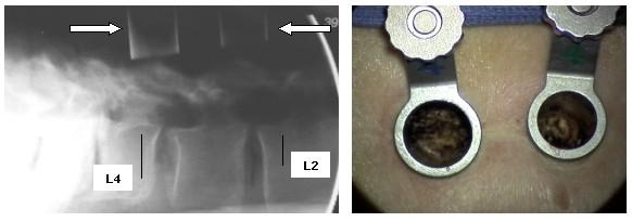 lumbar spondylolithesis